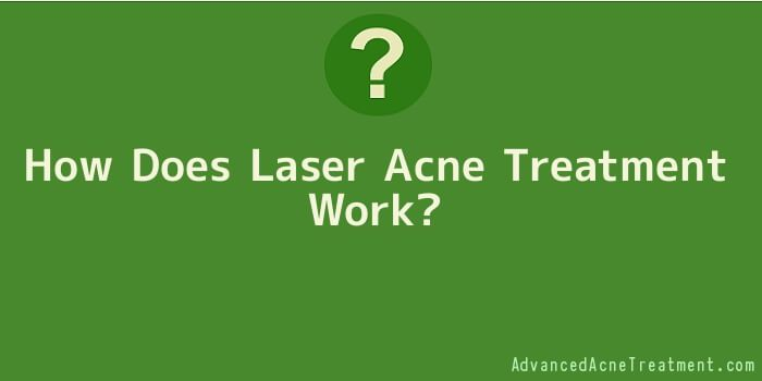 How Does Laser Acne Treatment Work