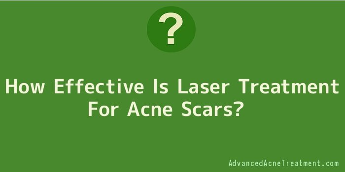How Effective Is Laser Treatment For Acne Scars