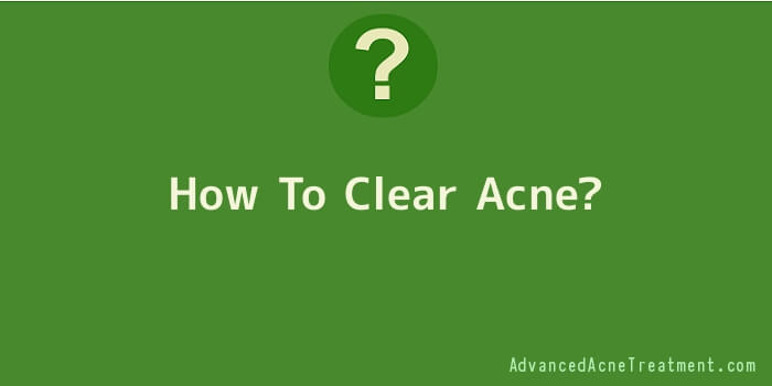 How To Clear Acne