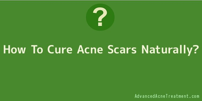 How To Cure Acne Scars Naturally