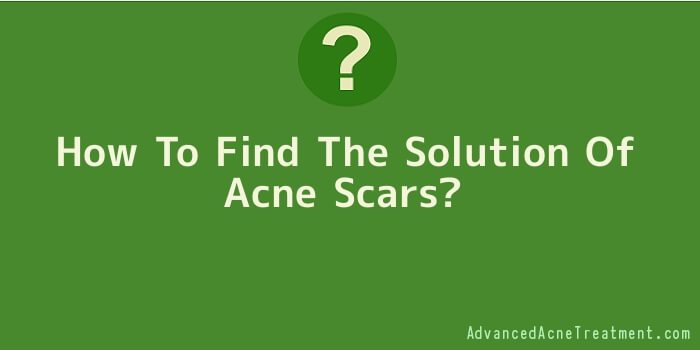 How To Find The Solution Of Acne Scars