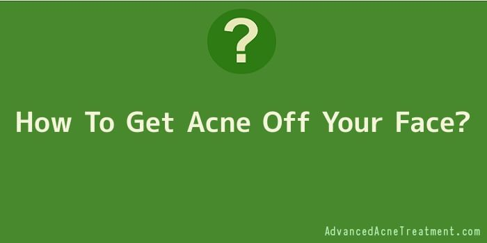 How To Get Acne Off Your Face