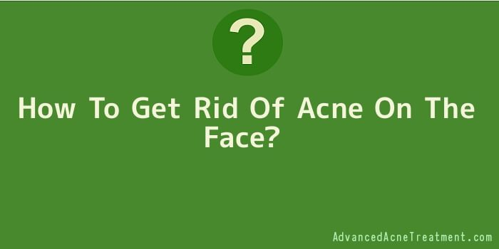 How To Get Rid Of Acne On The Face