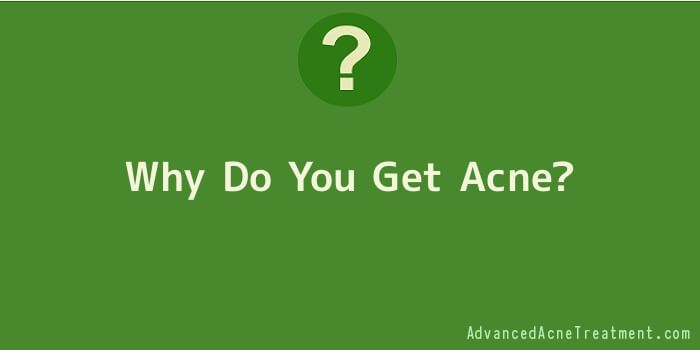 Why Do You Get Acne