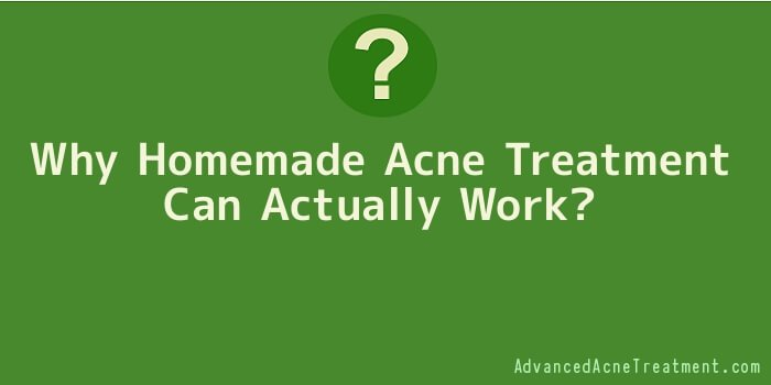 Why Homemade Acne Treatment Can Actually Work