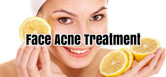 Face Acne Treatment